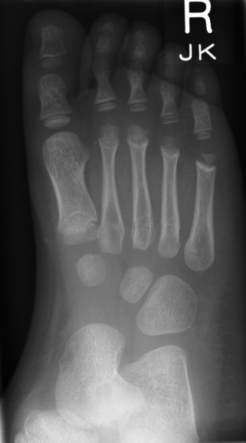 X-ray Right Foot